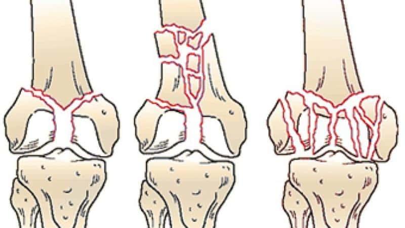 Что такое внутрисуставной перелом