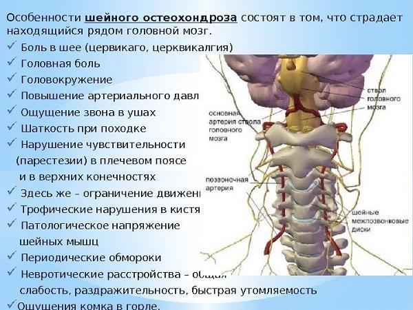 Что делать при обострении остеохондроза