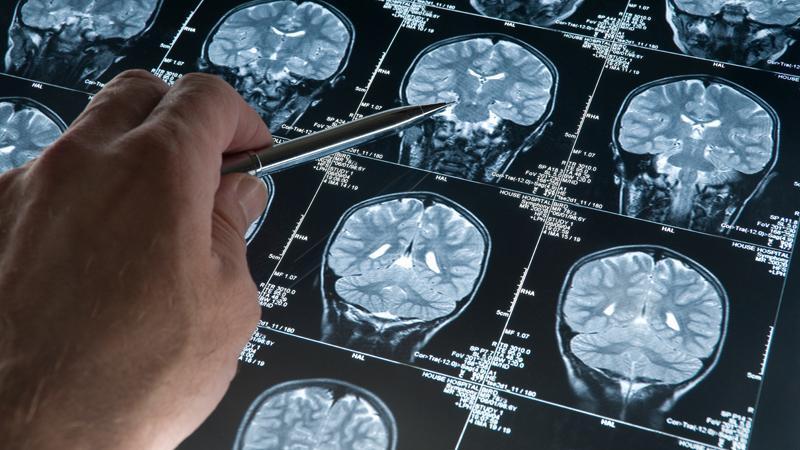 Чем опасен перелом черепа