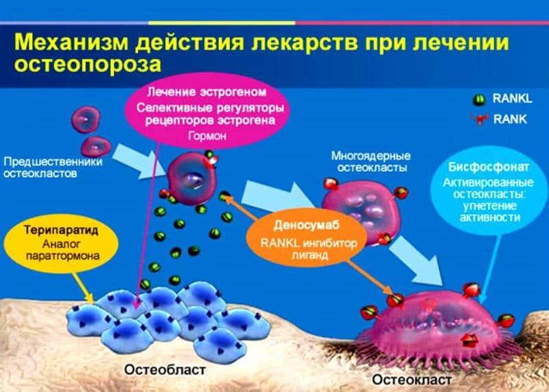 Помогают ли бисфосфонаты для лечения остеопороза