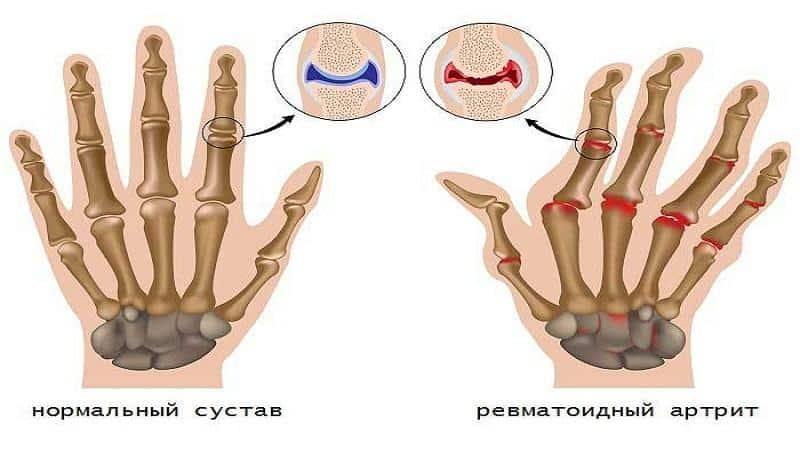 Как лечить ревматоидный артрит пальцев рук