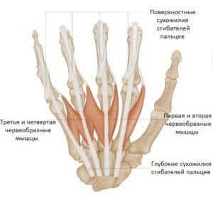 Что делать, если болит сустав кисти руки