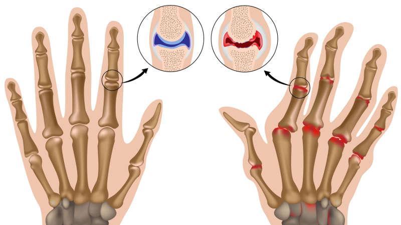 Какие мази применяют при артрите