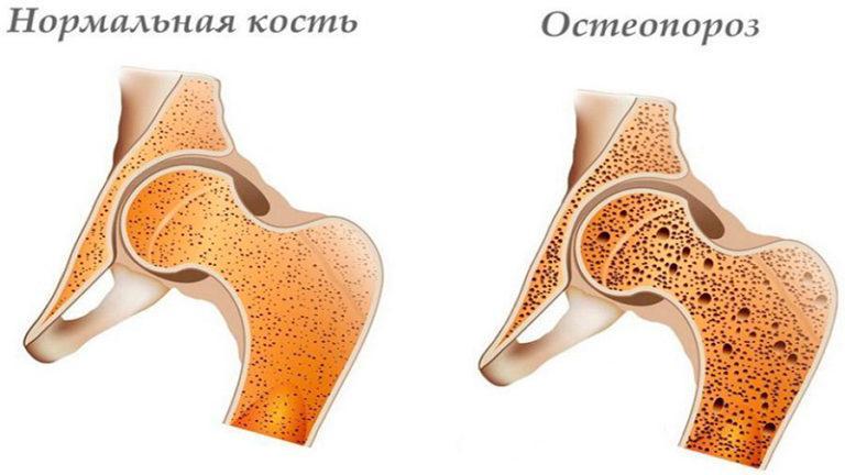 У меня остеопороз тазобедренного сустава