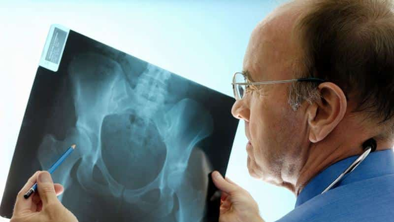 Как лечить остеопороз тазобедренного сустава