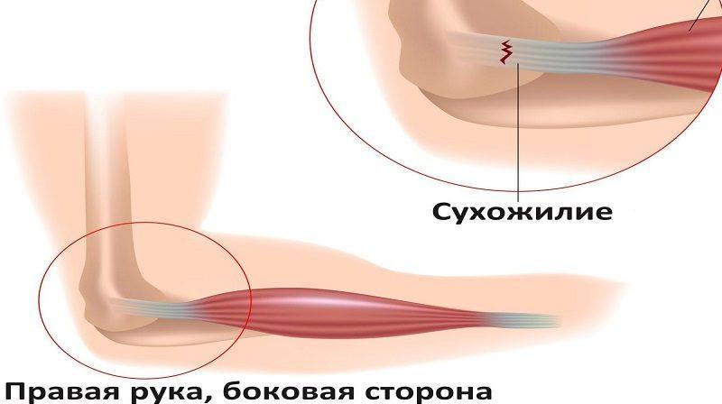 Как лечить растяжение связок локтевого сустава