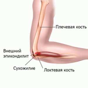 Растяжение сухожилия локтевого сустава симптомы лечить суставы народными средст
