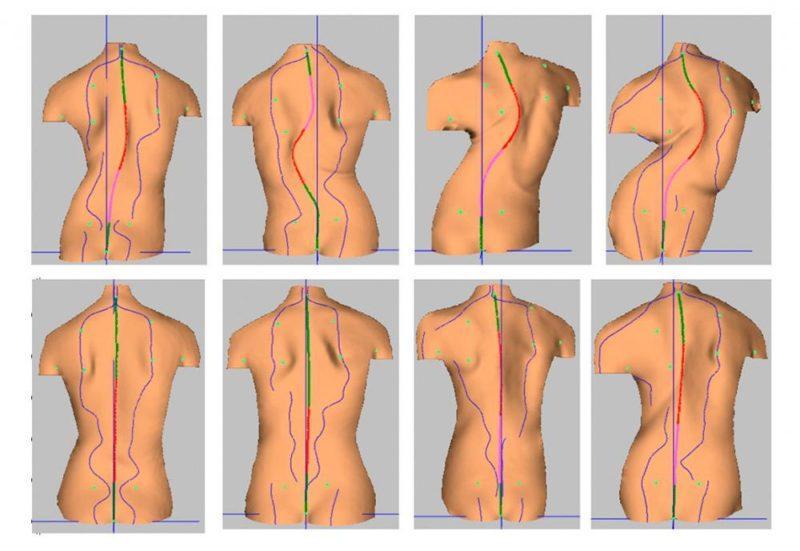 Как лечить грудопоясничный сколиоз