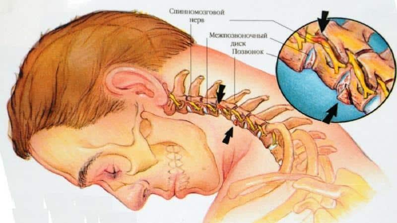 Лечение шейного остеохондроза и ВСД