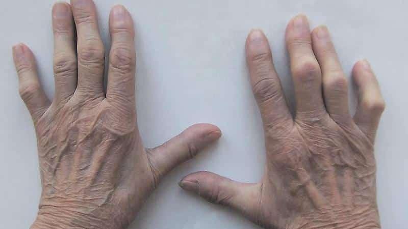 Как лечить хронический артрит