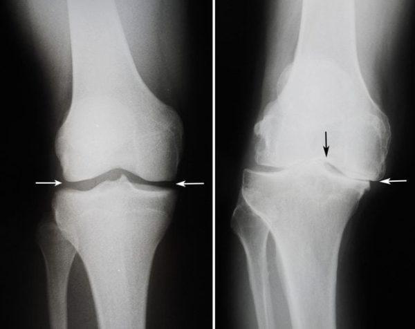 Виды заболеваний коленных суставов