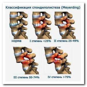 Как лечить спондилолистез поясничного отдела позвоночника