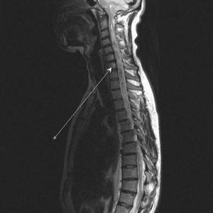 Что показывает МРТ спинного мозга