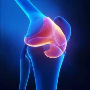 Как восстановить хрящевую ткань коленного сустава