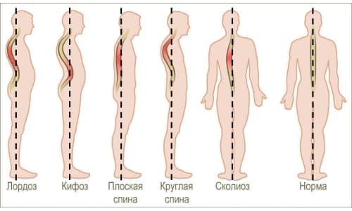 Комплекс упражнений для позвоночника на доске Евминова