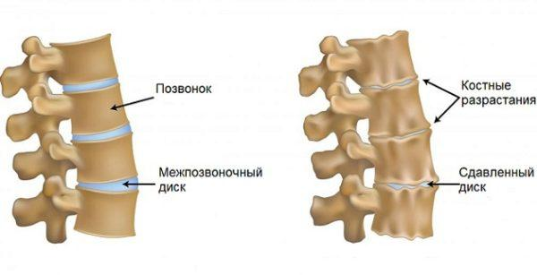 Как лечить артроз шейного отдела
