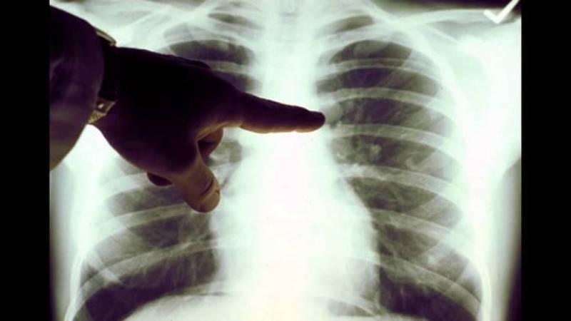 Как лечат рак костей и суставов