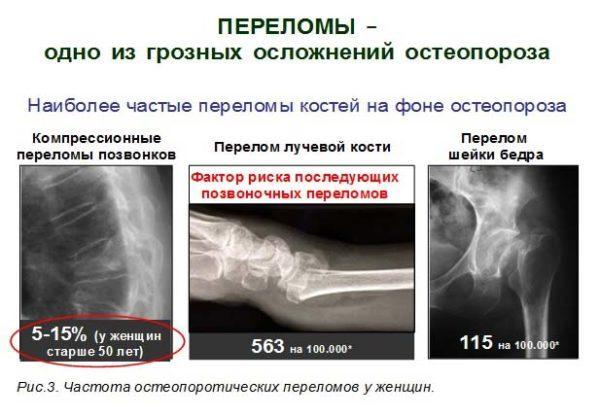 Как лечить остеопороз позвоночника