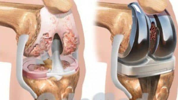 Как лечить деформирующий артроз коленных суставов