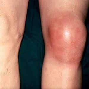 Как лечить тендинит коленного сустава