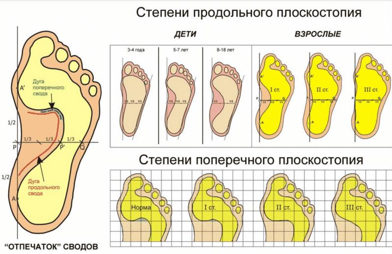 Гимнастика для стоп при плоскостопии у детей и взрослых