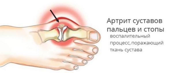 Лечение заболеваний плюснефалангового сустава