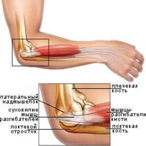 Как лечить артрит локтевого сустава