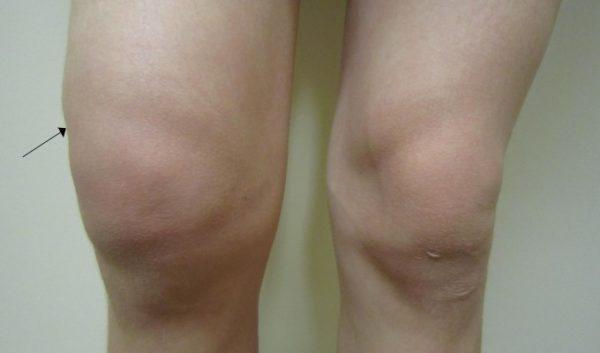 Как лечат рак колена