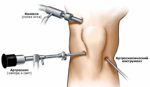 Что такое недифференцированный артрит