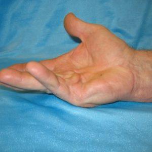 Как лечить синдром Дюпюитрена