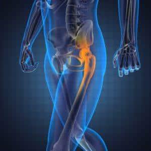 Как лечат рак тазобедренного сустава