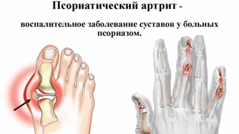 Какие бывают артриты