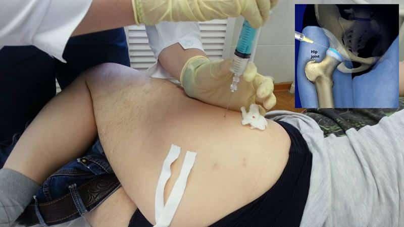 Что такое блокада тазобедренного сустава и как её делают