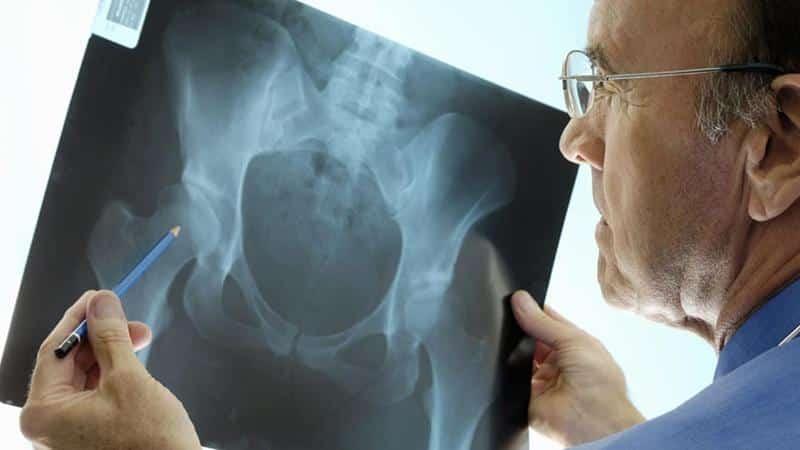 Как делают МРТ тазобедренного сустава