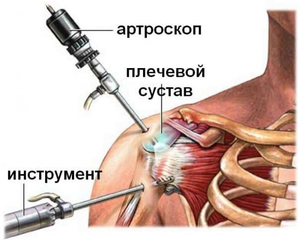 Изображение - Разрыв хрящевой губы плечевого сустава Kak-lechit-povrezhdenie-sustavnoj-guby-plechevogo-sustava-1