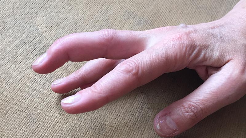 Как лечить разрыв сухожилия на пальце руки
