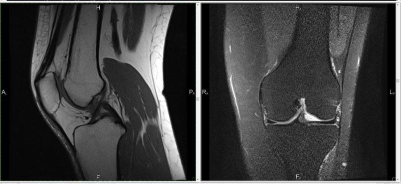 Как проходит МРТ коленного сустава