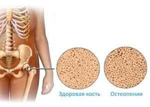 Что такое остеопения