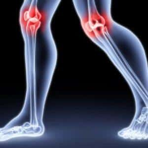 Что такое остеотомия и как её делают