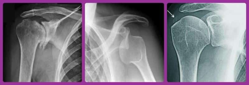 Снимки плечевого сустава