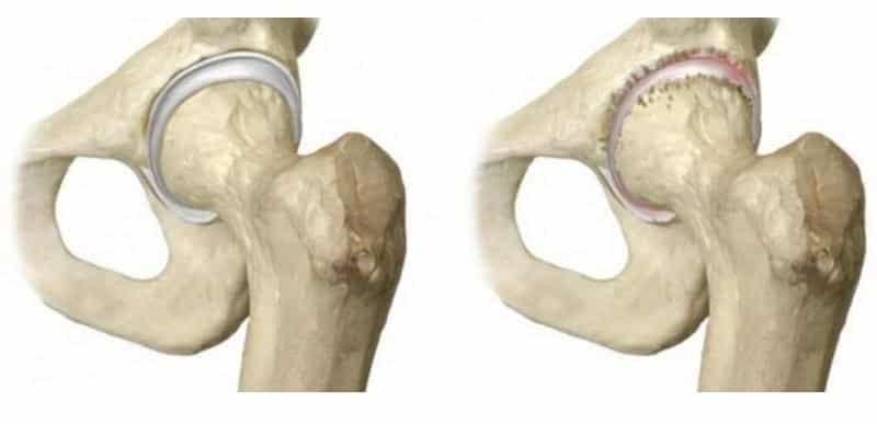 Как лечить хруст в тазобедренном суставе