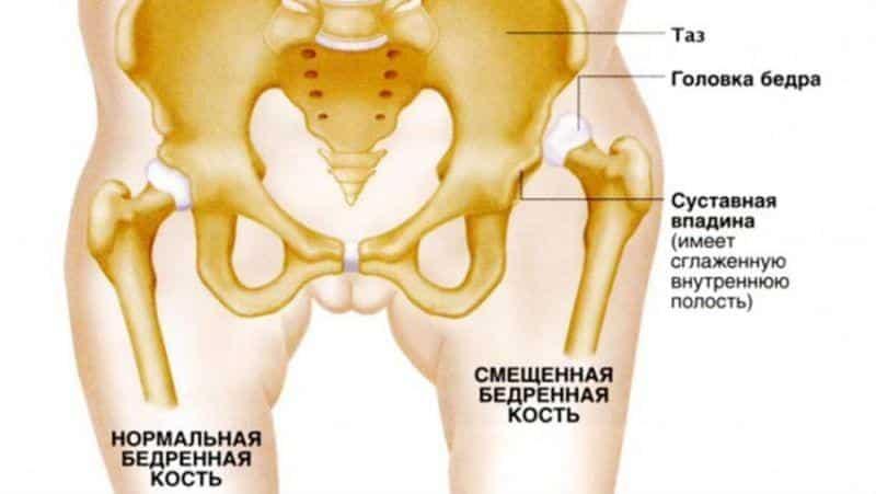 Почему хрустят суставы у детей