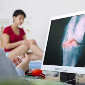Изображение - Как лечить синдром суставов lechenie-pri-sustavnom-sindrome_5