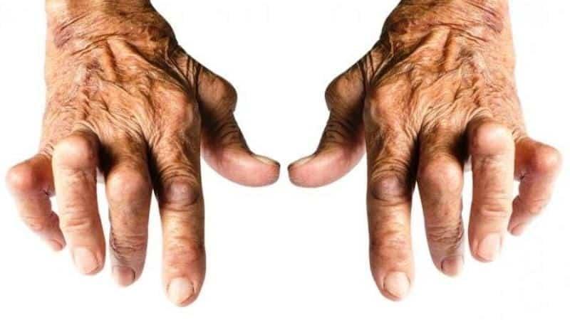 Что такое серонегативный ревматоидный артрит