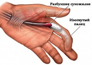 Как лечить стенозирующий лигаментит пальцев