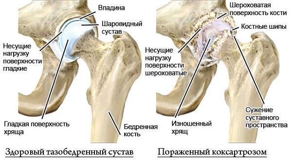Как лечить остеоартроз тазобедренных суставов