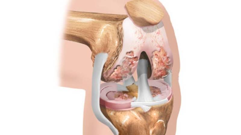 Как лечить остеохондроз коленного сустава