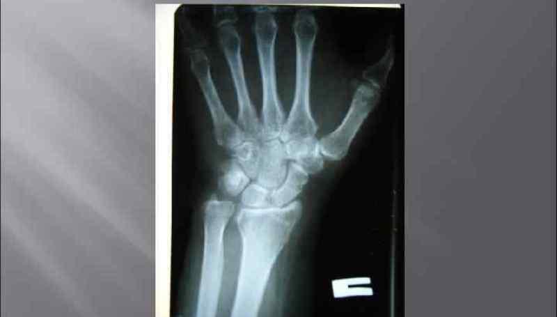 Как лечить перелом шиловидного отростка