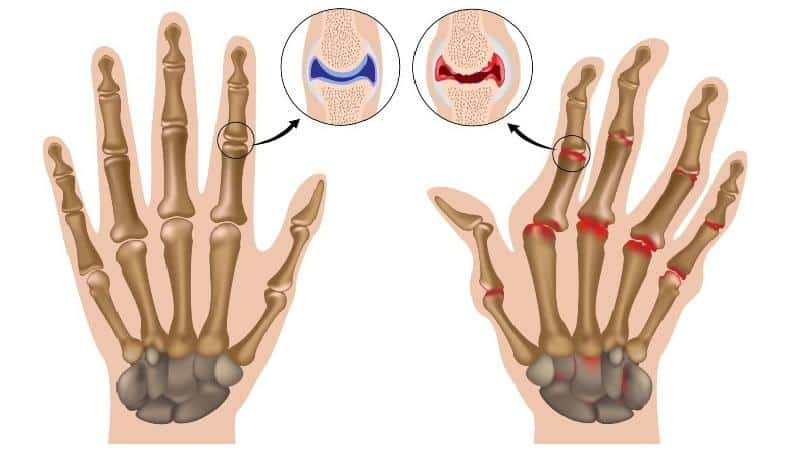Как лечить ювенильный артрит