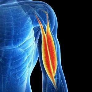 Как лечить миозит плеча